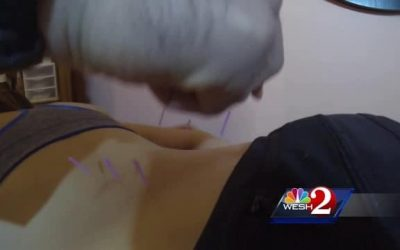 State of Addiction: Acupuncture